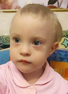 Надя Минаева, 2 года, врожденный порок сердца, спасет эндоваскулярная операция. 312500 руб.