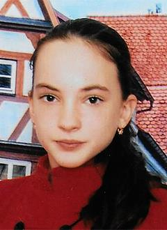 Марина Третьякова, 11 лет, недоразвитие челюстей, сужение зубных рядов, скученное положение зубов, требуется ортодонтическое лечение. 320000 руб.