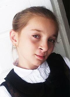 Загра Аслудинова, 9 лет, послеоперационная рубцовая деформация верхней губы и носа, расщелина альвеолярного отростка, сужение зубных рядов, требуется ортодонтическое лечение. 75000 руб.