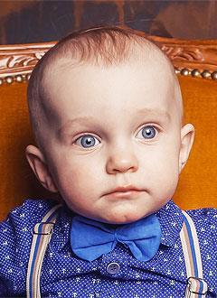 Кирилл Лось, полтора года, объемное образование в черепе, гидроцефалия, спасут операции. 835928 руб.