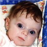 Маша Пирогова, деформация черепа, требуется лечение специальными шлемами, 180000 руб.