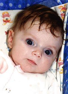 Маша Пирогова, 10 месяцев, деформация черепа, требуется лечение специальными шлемами. 180000 руб.