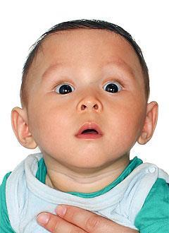 Тимур Нукеев, 10 месяцев, деформация черепа, требуется лечение специальными шлемами. 180000 руб.