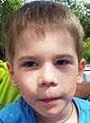 Ваня Еврилов, 7 лет, детский церебральный паралич, требуется специальный тренажер. 142135 руб.