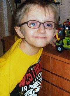 Дима Рожков, 12 лет, несовершенный остеогенез, требуется курсовое лечение. 527310 руб.