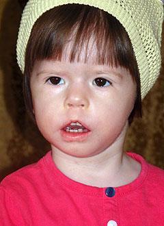 Вика Батракова, полтора года, врожденная двусторонняя тугоухость 3-й степени, требуется слуховой аппарат. 316820 руб.
