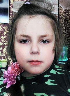 Василиса Челышева, 7 лет, малоберцовая гемимелия (отсутствие кости), укорочение левой голени, требуется этапное хирургическое лечение. 432915 руб.