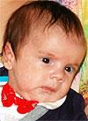 Коля Гаврилов, 3 месяца, врожденная двусторонняя косолапость, требуется лечение по методу Понсети. 151900 руб.