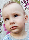 Вова Киперь, врожденная двусторонняя косолапость, рецидив, требуется лечение, 183125 руб.