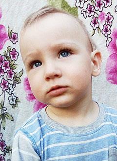 Вова Киперь, полтора года, врожденная двусторонняя косолапость, рецидив, требуется лечение. 206150 руб.