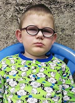 Антон Ходоренко, 6 лет, отслойка сетчатки обоих глаз, требуются операции. 288263 руб.