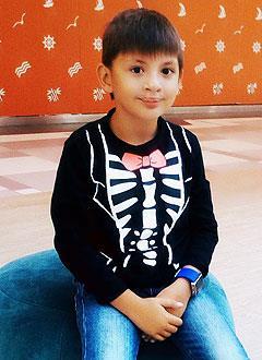 Юра Нагорных, 6 лет, рубцовая деформация губы и носа, расщелина альвеолярного отростка, сужение и деформация челюстей, требуется ортодонтическое лечение. 200000 руб.