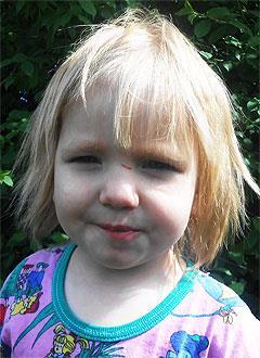 Аня Кичигина, 2 года, врожденный порок сердца, спасет эндоваскулярная операция. 339063 руб.