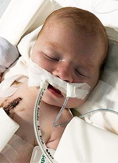 Ника Пешкичева, 1 месяц, тяжелый врожденный порок сердца, спасет эндоваскулярная операция. 156650 руб.