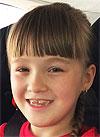 Вика Арькова, 8 лет, детский церебральный паралич, требуется лечение. 199430 руб.