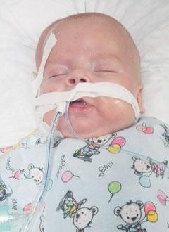 Никита Божко, 5 месяцев, бронхолегочная дисплазия, требуется специальное оборудование для дыхания. 439401 руб.