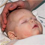 Степа Петров, врожденный порок сердца, спасет операция, 471623 руб.