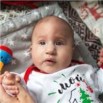 Саша Зюкина, врожденная деформация черепа, спасет операция, требуется подготовка к ней исаморассасывающиеся пластины, 870000 руб.